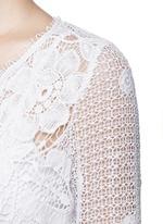 'Greta' scalloped lace rompers